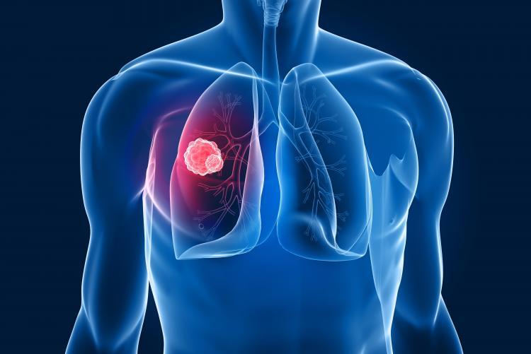 Câncer de pulmão pode ser causa de ginecomastia.