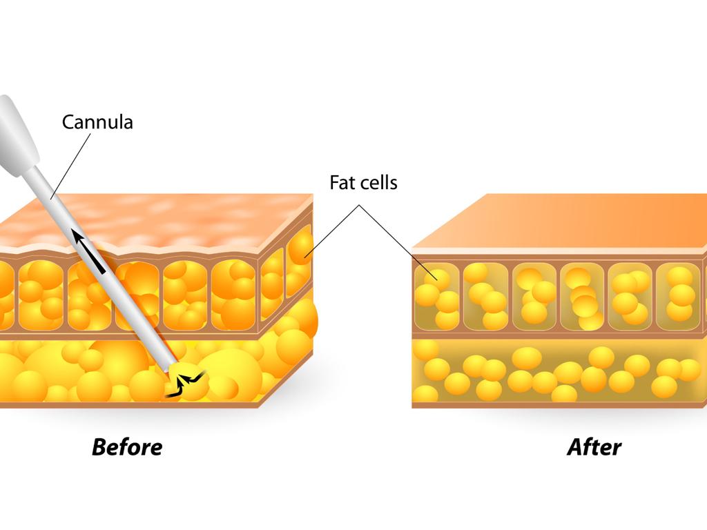 Tratamento Cir 250 Rgico Ginecomastia Org